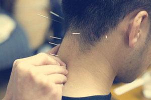 現代医学的鍼灸治療
