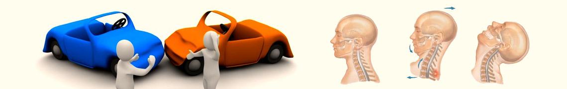 交通事故の対処法と整骨院の治療