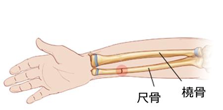 尺骨骨折 ( ひび )
