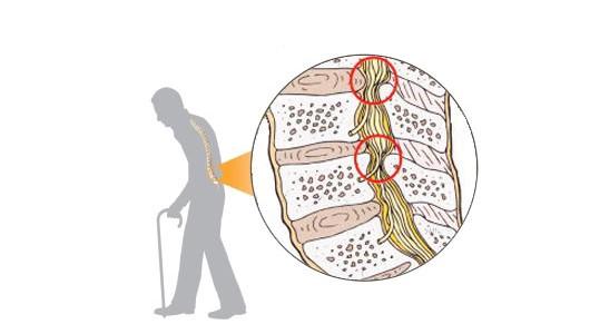 脊柱管狭窄症 1