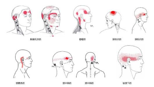 鍼灸・整骨院で緩和できる頭痛と症状