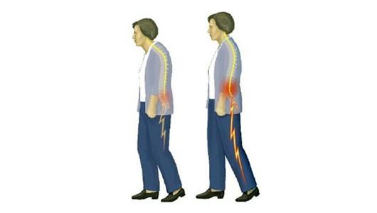 脊柱管狭窄症 2