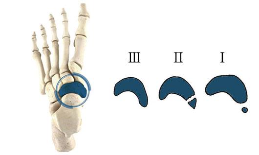 有通性外脛骨